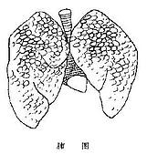 專業醫學:肺圖.JPG
