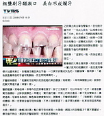 LG-竹鹽牙膏,Q10牙膏,竹鹽香皂:竹鹽牙膏~05.jpg