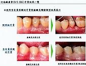 LG-竹鹽牙膏,Q10牙膏,竹鹽香皂:竹鹽牙膏~17.jpg